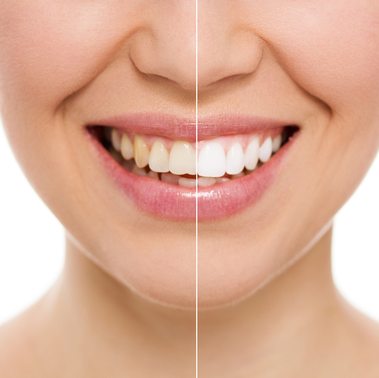Treatment Options for Yellow Teeth